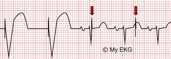 Electrocardiogram of pacemaker malfunction, Undersensing