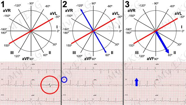 Cálculo preciso del Eje Cardiaco