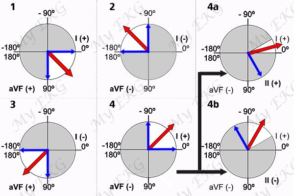 Eixo Elétrico e Derivações do eletrocardiograma