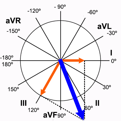 Cálculo exato do Eixo Elétrico do Eletrocardiograma