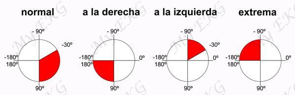 Axe  du cœur normal et déviations de l'axe