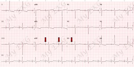 ECG avec stimulation auriculaire par pacemaker