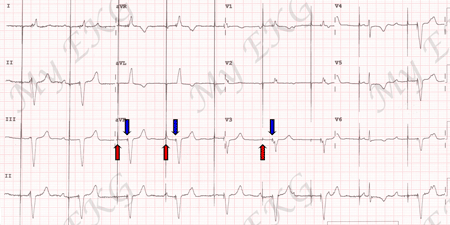 Dual chamber pacing EKG