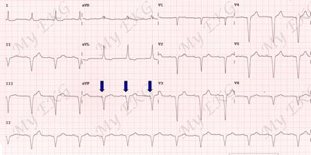 ECG avec stimulation ventriculaire par pacemaker