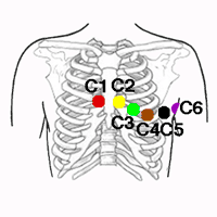 Precordial Electrodes of the IEC Electrode Colour Coding