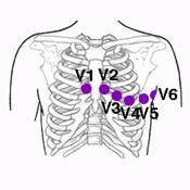 Electrodos Precordiales del EKG