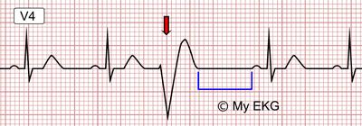 Extrassístole Ventricular em um Eletrocardiograma