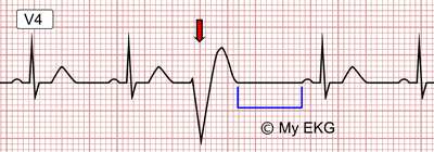 Eletrocardiograma de um Extrassístole Ventricular