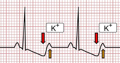 su hipertenzija EKG apkrova