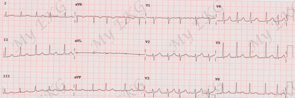 Atrial Fibrillation with Rapid Ventricular Response
