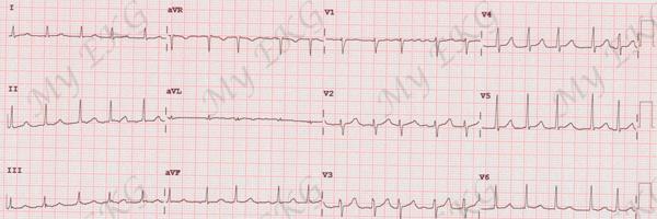 Fibrillation auriculaire avec réponse ventriculaire rapide