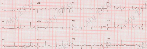 Atrial Fibrillation on the Electrocardiogram