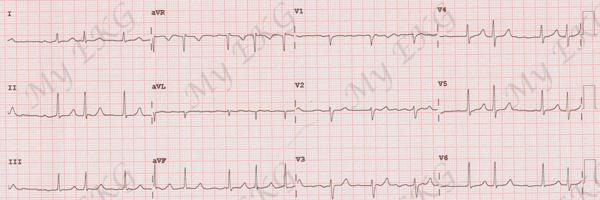 Electrocardiogramme de la fibrillation auriculaire sur l'électrocardiogramme