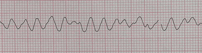 Ventricular Fibrillation on the Electrocardiogram