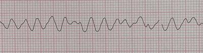 Fibrillation ventriculaire sur l'électrocardiogramme