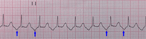 Typical Counterclockwise Atrial Flutter