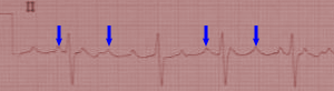 Typical Clockwise Atrial Flutter