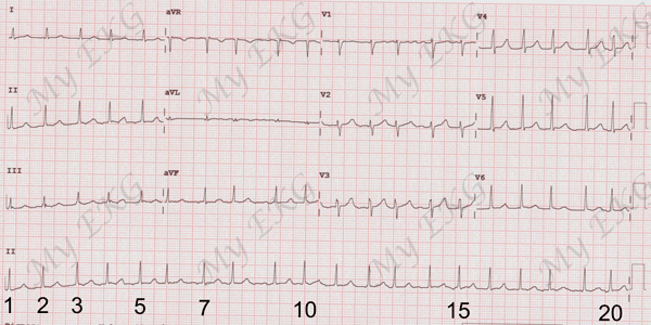 Calculating the Heart Rate from an Electrocardiogram with Irregular Rhythm
