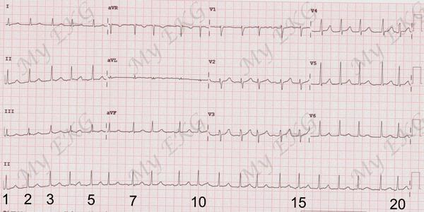 Cálculo de Frecuencia Cardiaca en Electrocardiograma con Ritmo Irregular