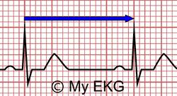 Calcul de la fréquence cardiaque par distance du intervalle RR