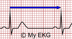 Determining the Heart Rate from an Electrocardiogram with Regular Rhythm