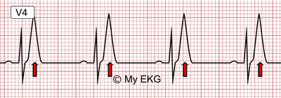 Eletrocardiograma de Hipercalemia Leve