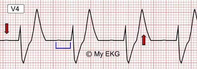 Eletrocardiograma de Hipercalemia Moderada