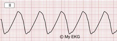 Eletrocardiograma de Hipercalemia Severa