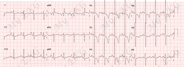 Right Ventricular Hypertrophy Electrocardiogram