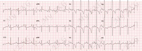 Électrocardiogramme de l'hypertrophie ventriculaire droite