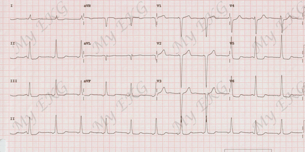 Left Ventricle Hypertrophy on the EKG
