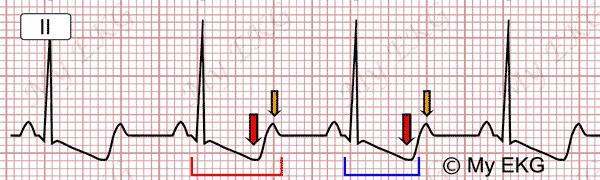 Falso intervalo QT longo na Hipocalemia