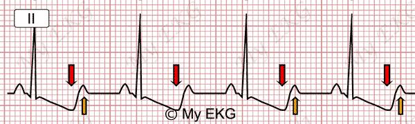 Électrocardiogramme de l'hypokaliémie sévère
