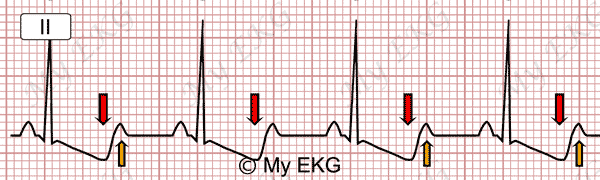 Eletrocardiograma de Hipocalemia Severa
