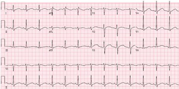 Hidroxicloroquina no Eletrocardiograma