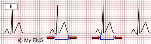 Eletrocardiograma de Hipercalcemia