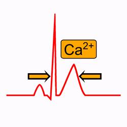 Hypercalcémie dans l'électrocardiogramme