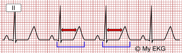 Electrocardiogram of Hypocalcemia