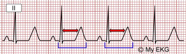 Electrocardiograma de la Hipocalcemia