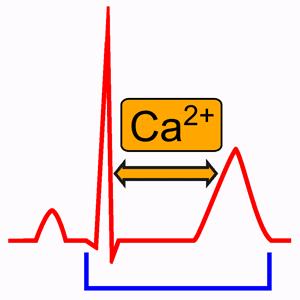 Hypocalcémie dans l'électrocardiogramme