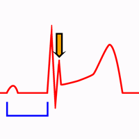 Hipotermia no Eletrocardiograma