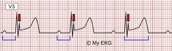 Électrocardiogramme de l'hypothermie légère