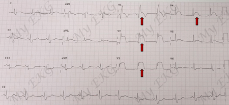 ST-segment Elevation Myocardial Infarction