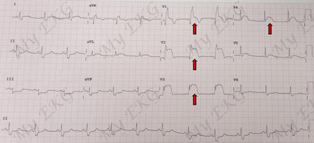 Infarto miocardico con sopraslivellamento del ST