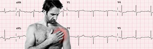 Altérations sur l'électrocardiogramme