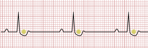 Digoxin on the EKG