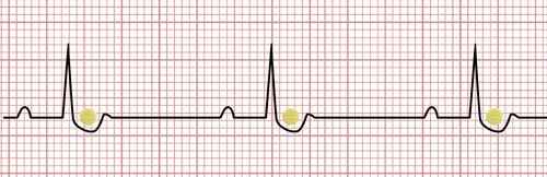Digoxin on the EKG