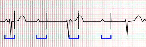 Pacemaker Malfunctions on the EKG
