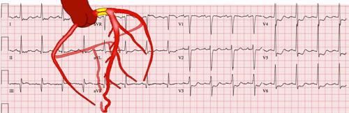 Infarto Agudo do Miocárdio de Diagnóstico Difícil