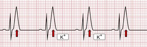 Hyperkalemia on the EKG